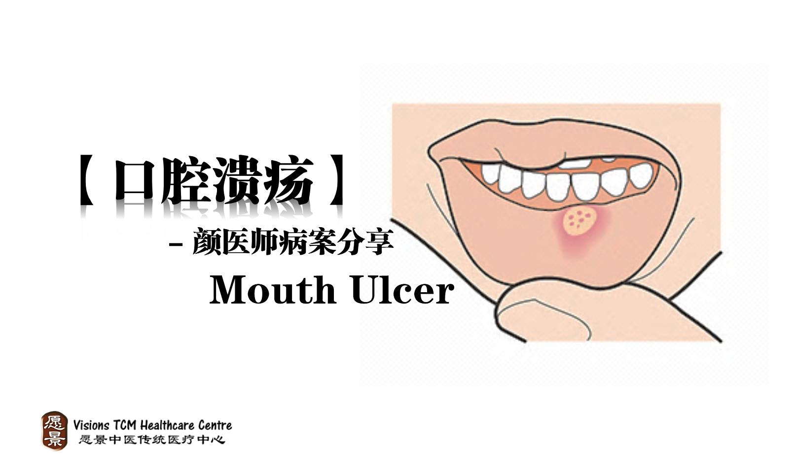 口腔溃疡 – 病案分享 – 颜医师