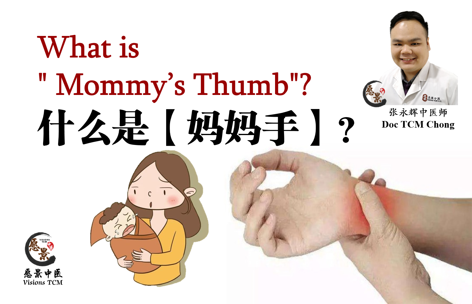 "What is "" Mommy's Thumb""?"